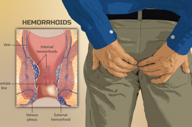 Demystifying Hemorrhoids