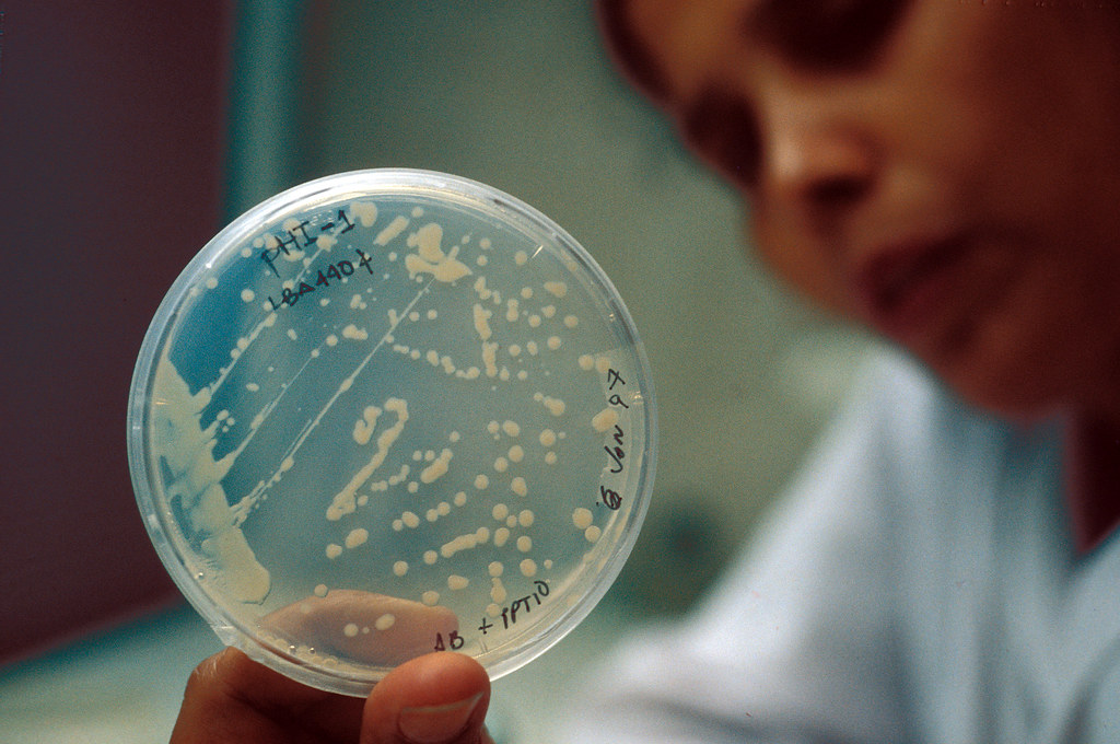 Bacteria sample inside petri dish for biotechnology study.
